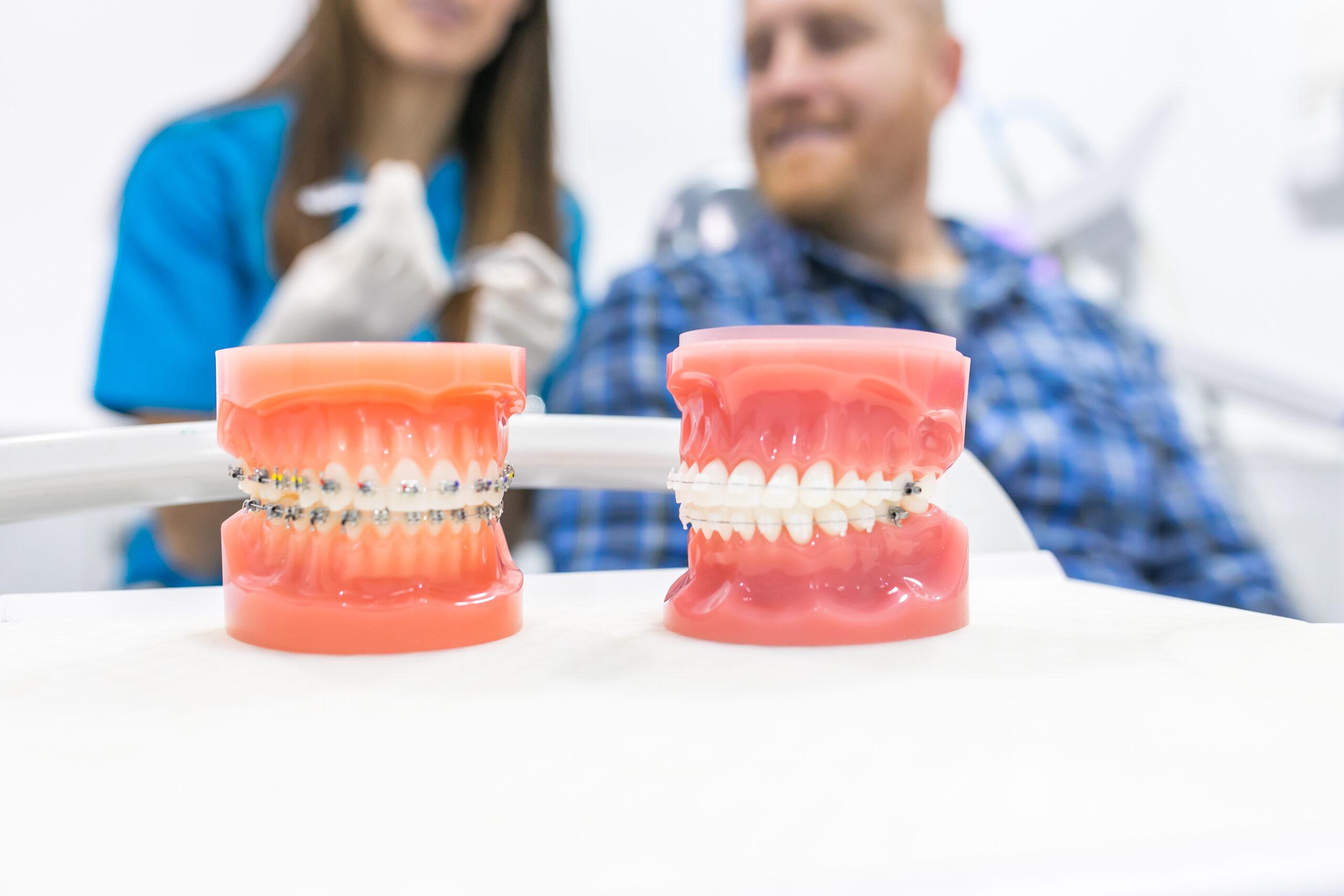 protesis dentales en Godella - brackets
