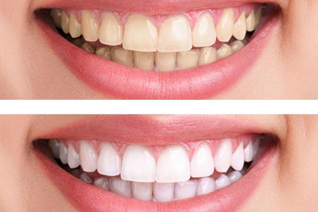 estética dental en Godella - antes y después
