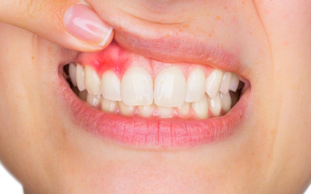 periodoncia en Godella - gingivitis