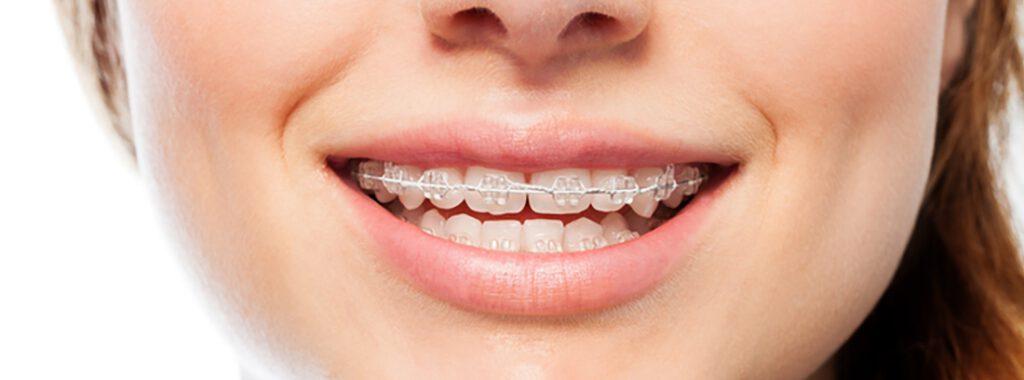 ortodoncia en Godella - zafiro