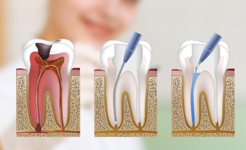endodoncia en Godella - técnica