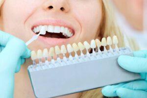 prótesis dentales en Burjasot - carillas