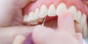 prótesis dentales en Burjasot - diseño de dientes