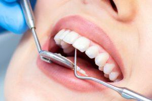 clinica dental en burjasot - revisión