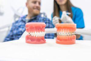 ortodoncia convencional en Burjassot - demostración