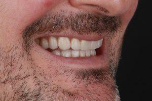 estética dental en Burjassot - perfil