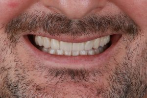 estética dental en Burjassot - sonrisa frontal