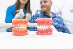 ortodoncia en Burjassot - modelos dentales